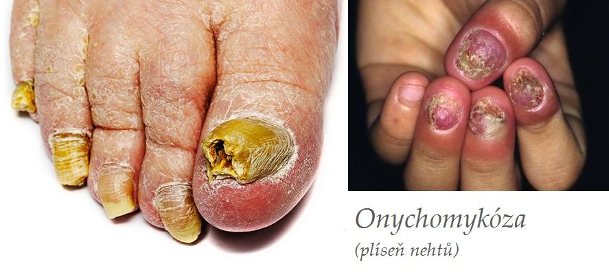 Onychomykóza